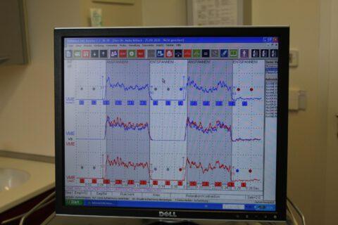 Muskelfunktionsdiagnostik mittels EMG
